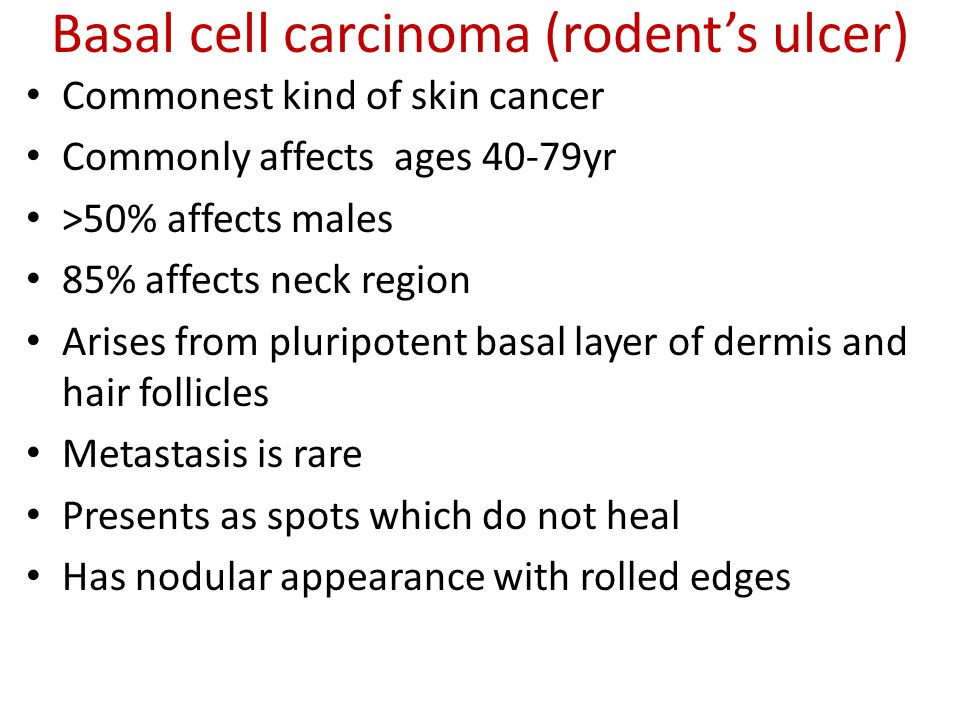 Basal cell carcinoma (rodent's ulcer) Commonest kind of skin cancer Commonly affects ages 40-79yr >50% affects males 85% affects neck region Arises fr