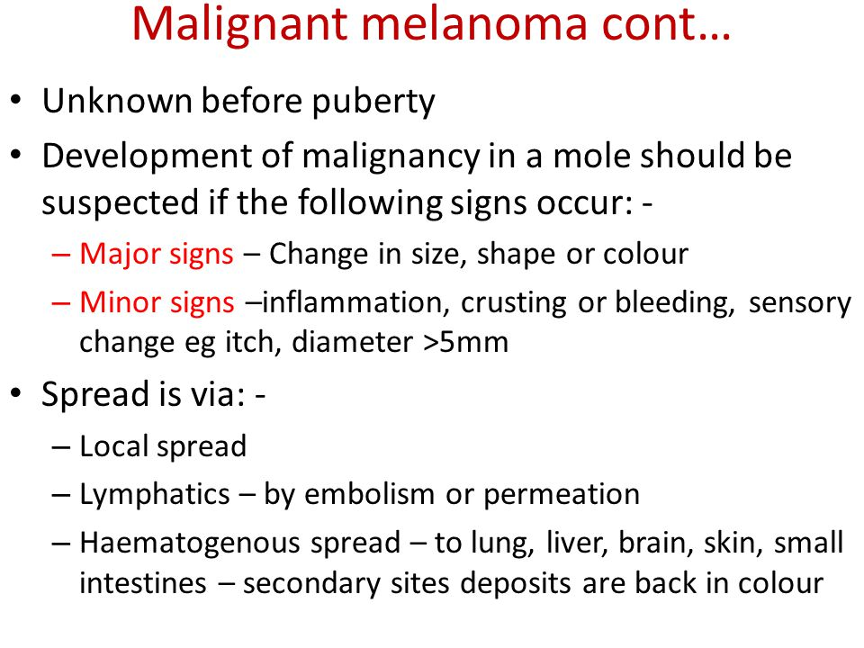 Malignant melanoma cont… Unknown before puberty Development of malignancy in a mole should be suspected if the following signs occur: - – Major signs
