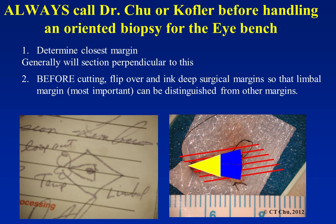 © CT Chu, 2012 ALWAYS call Dr. Chu or Kofler before handling an oriented biopsy for the Eye bench 1.Determine closest margin Generally will section pe