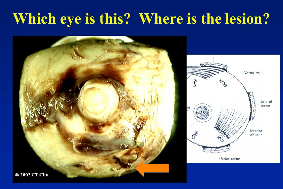 © 2002 CT Chu Which eye is this Where is the lesion