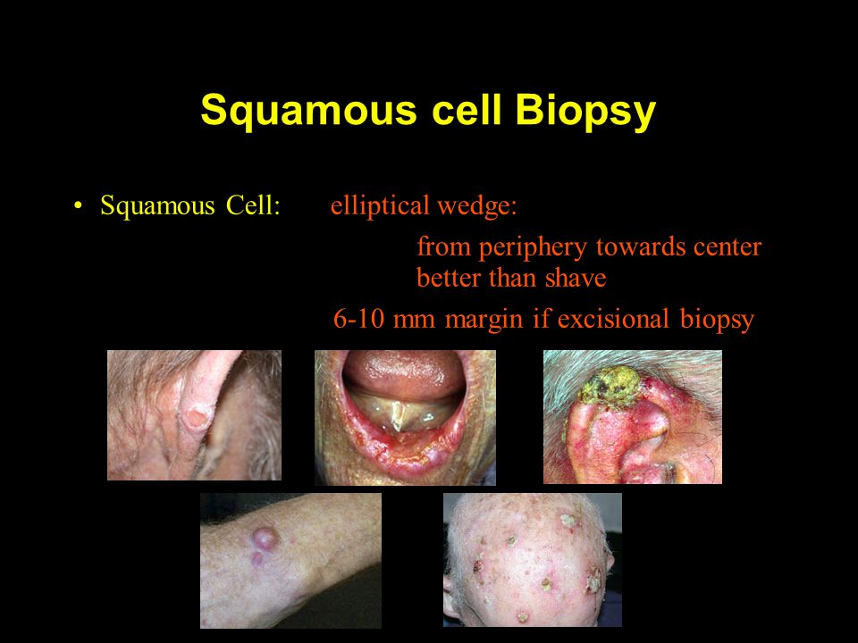 Squamous cell Biopsy Squamous Cell: elliptical wedge: from periphery towards center better than shave 6-10 mm margin if excisional biopsy