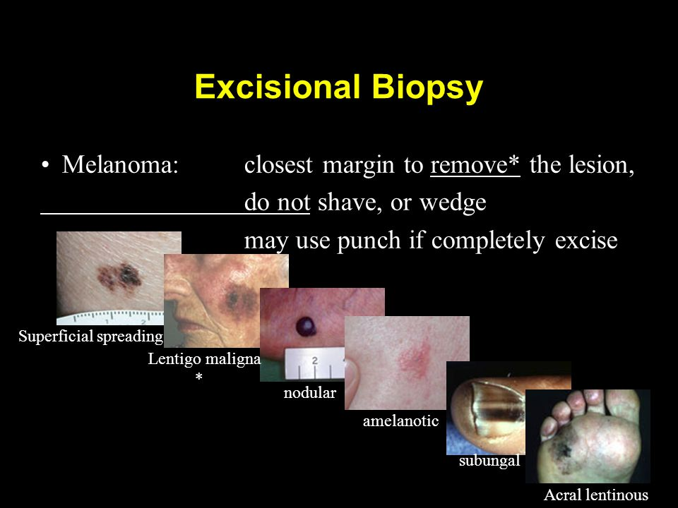 Excisional Biopsy Melanoma: closest margin to remove* the lesion, do not shave, or wedge may use punch if completely excise Superficial spreading Lent