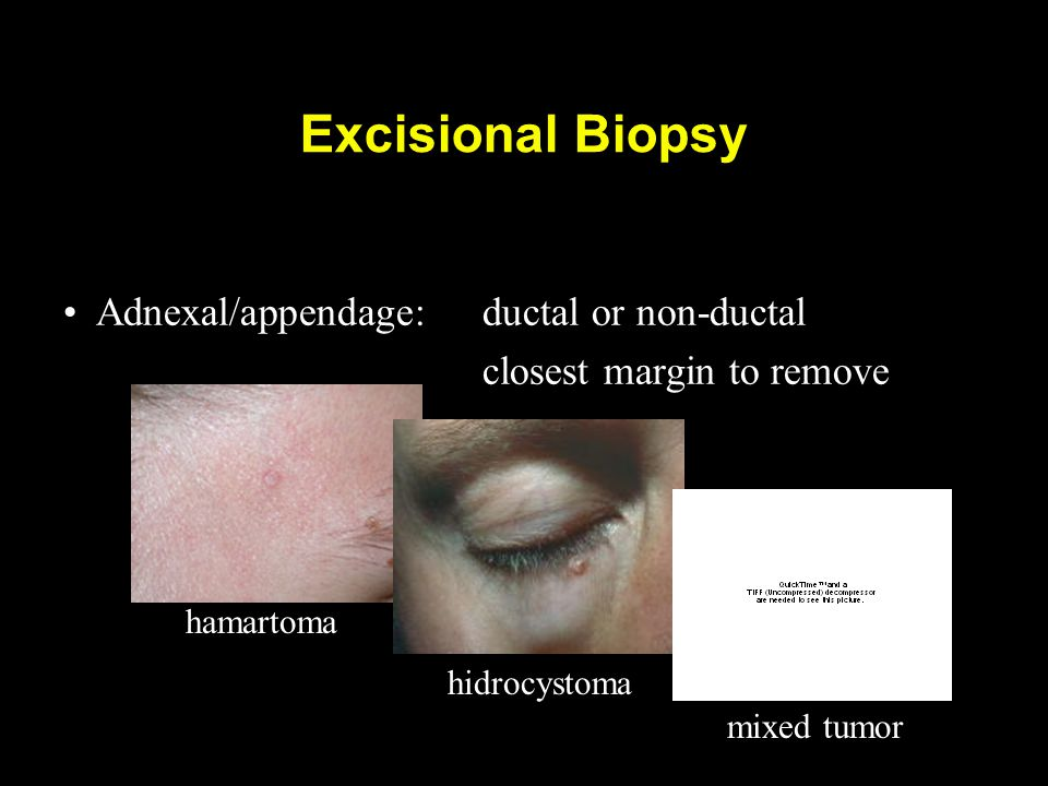 Excisional Biopsy Adnexal/appendage:ductal or non-ductal closest margin to remove hamartoma hidrocystoma mixed tumor