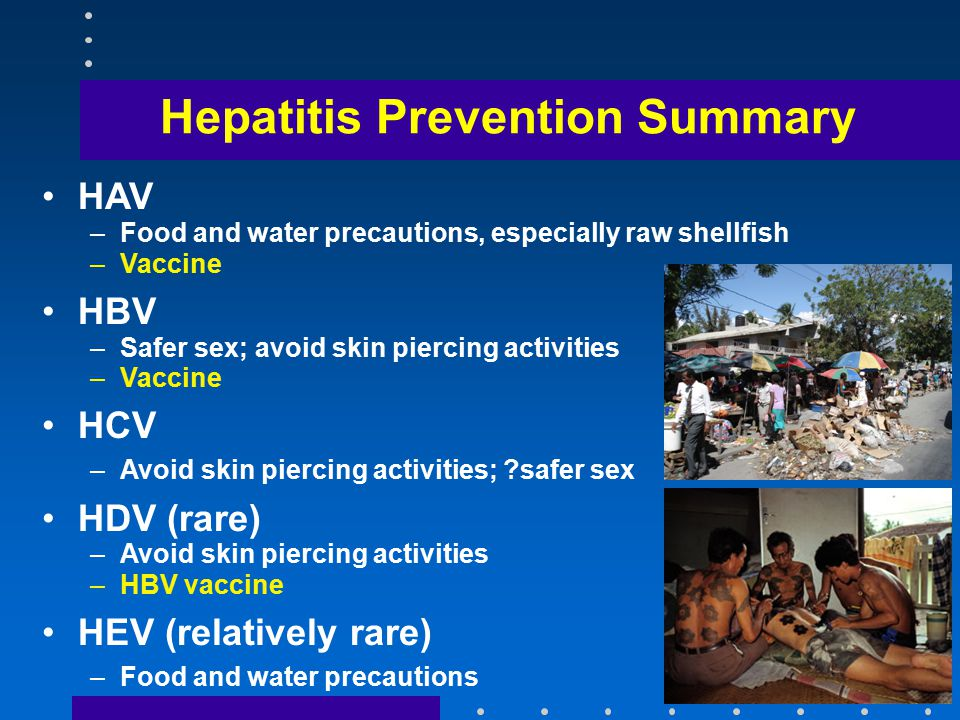 Hepatitis Prevention Summary HAV –Food and water precautions, especially raw shellfish –Vaccine HBV –Safer sex; avoid skin piercing activities –Vaccine HCV –Avoid skin piercing activities; safer sex HDV (rare) –Avoid skin piercing activities –HBV vaccine HEV (relatively rare) –Food and water precautions