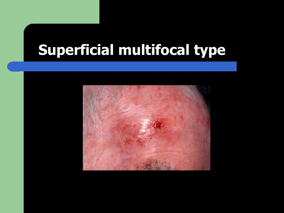Superficial multifocal type