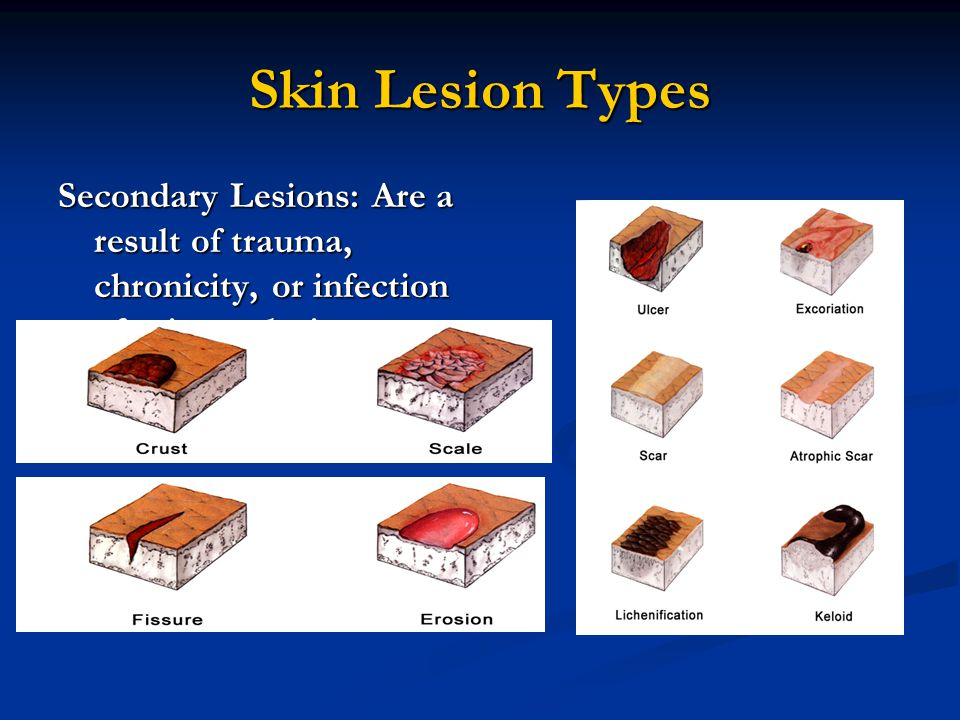 Skin Lesion Types Secondary Lesions: Are a result of trauma, chronicity, or infection of primary lesion.