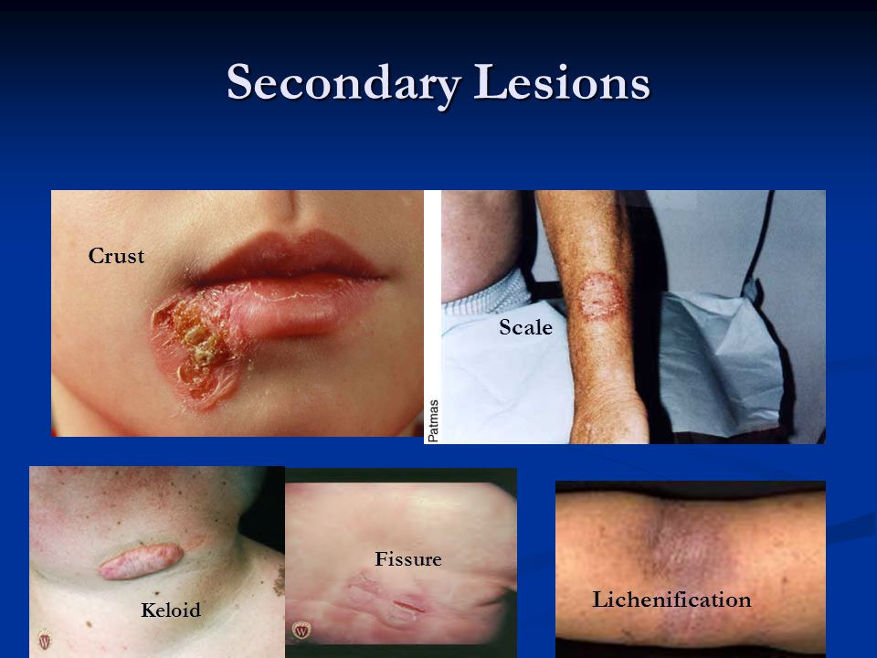Secondary Lesions Keloid Fissure Crust Scale Lichenification