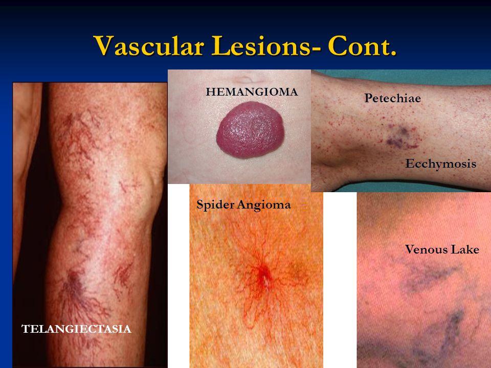 Vascular Lesions- Cont. HEMANGIOMA TELANGIECTASIA Spider Angioma Petechiae Ecchymosis Venous Lake
