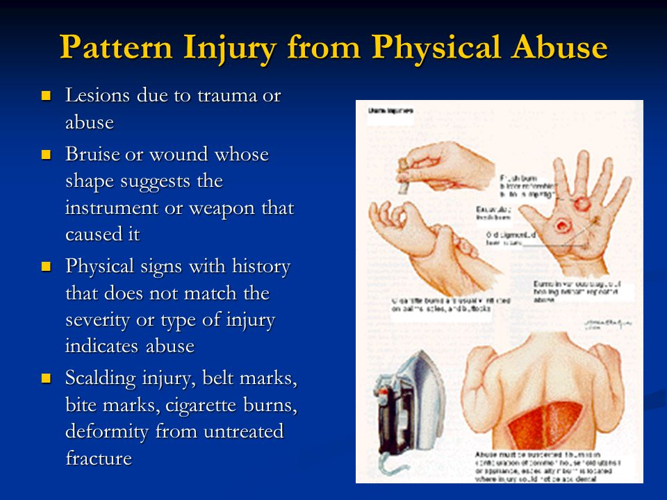 Pattern Injury from Physical Abuse Lesions due to trauma or abuse Lesions due to trauma or abuse Bruise or wound whose shape suggests the instrument or weapon that caused it Bruise or wound whose shape suggests the instrument or weapon that caused it Physical signs with history that does not match the severity or type of injury indicates abuse Physical signs with history that does not match the severity or type of injury indicates abuse Scalding injury, belt marks, bite marks, cigarette burns, deformity from untreated fracture Scalding injury, belt marks, bite marks, cigarette burns, deformity from untreated fracture
