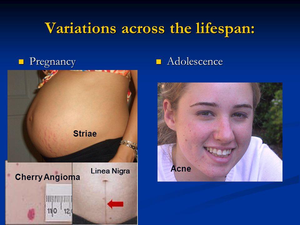 Infestations Cont. Scabies lesion distribution Scabies lesion distribution
