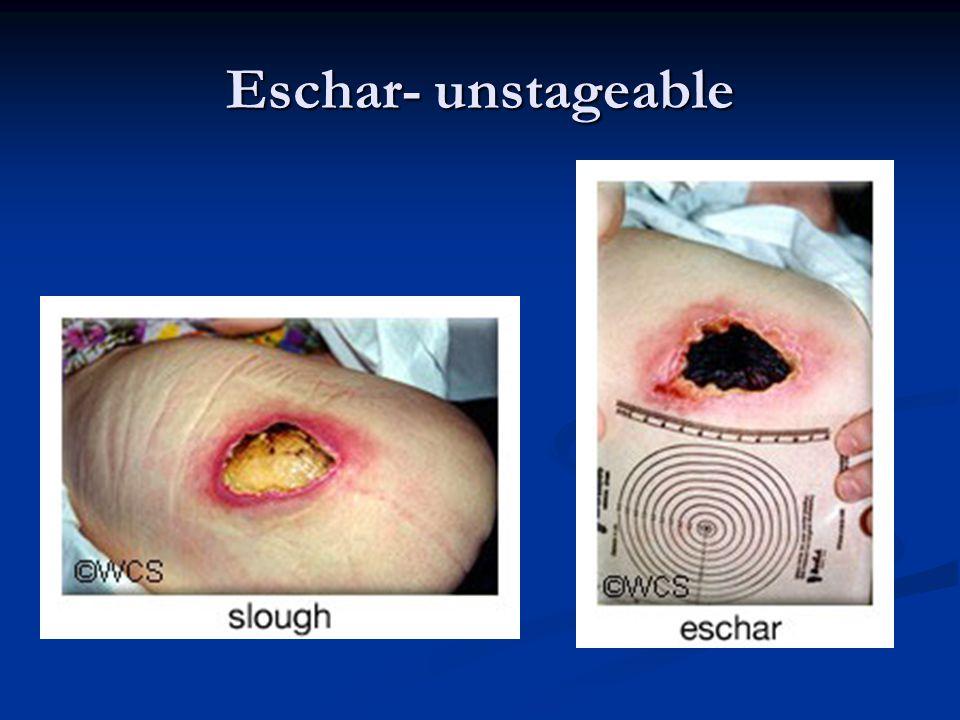 Eschar- unstageable