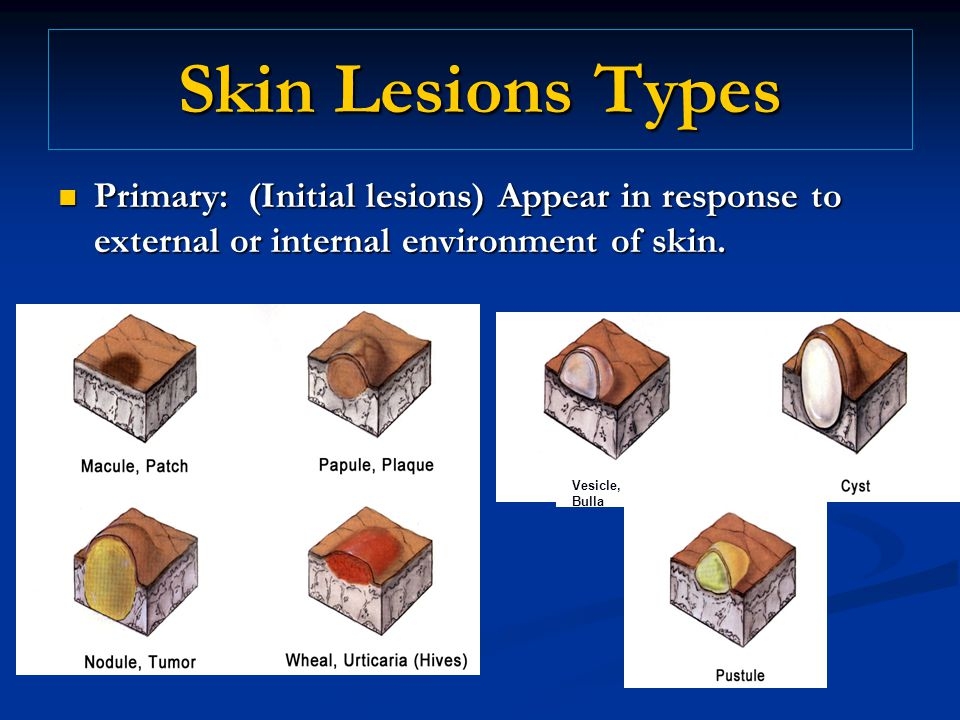 Skin Lesions Types Primary: (Initial lesions) Appear in response to external or internal environment of skin.