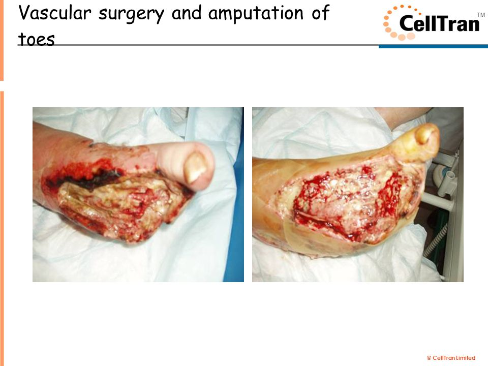 © CellTran Limited TM Vascular surgery and amputation of toes