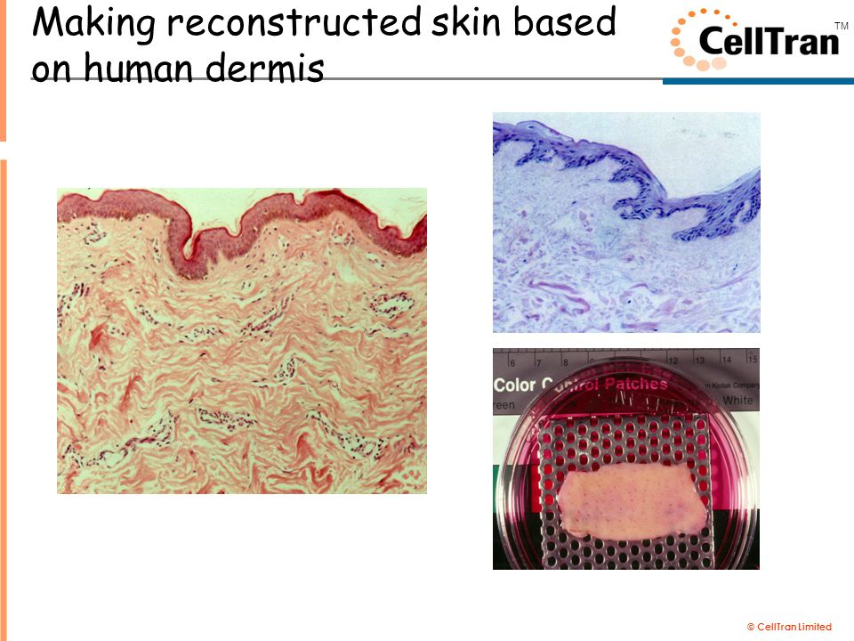 © CellTran Limited TM Making reconstructed skin based on human dermis