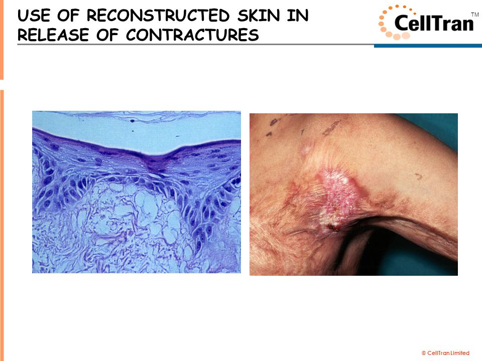 © CellTran Limited TM USE OF RECONSTRUCTED SKIN IN RELEASE OF CONTRACTURES