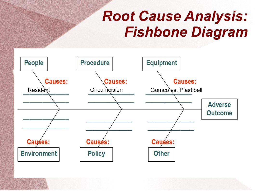Root Cause Analysis: Fishbone Diagram ResidentGomco vs. Plastibell Circumcision