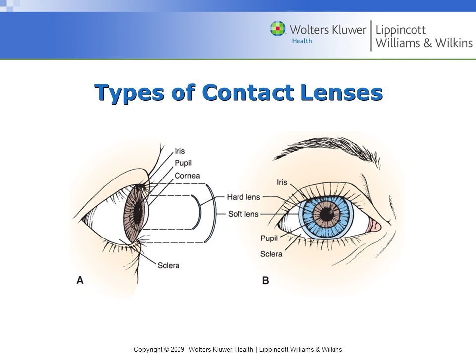 Copyright © 2009 Wolters Kluwer Health | Lippincott Williams & Wilkins Types of Contact Lenses