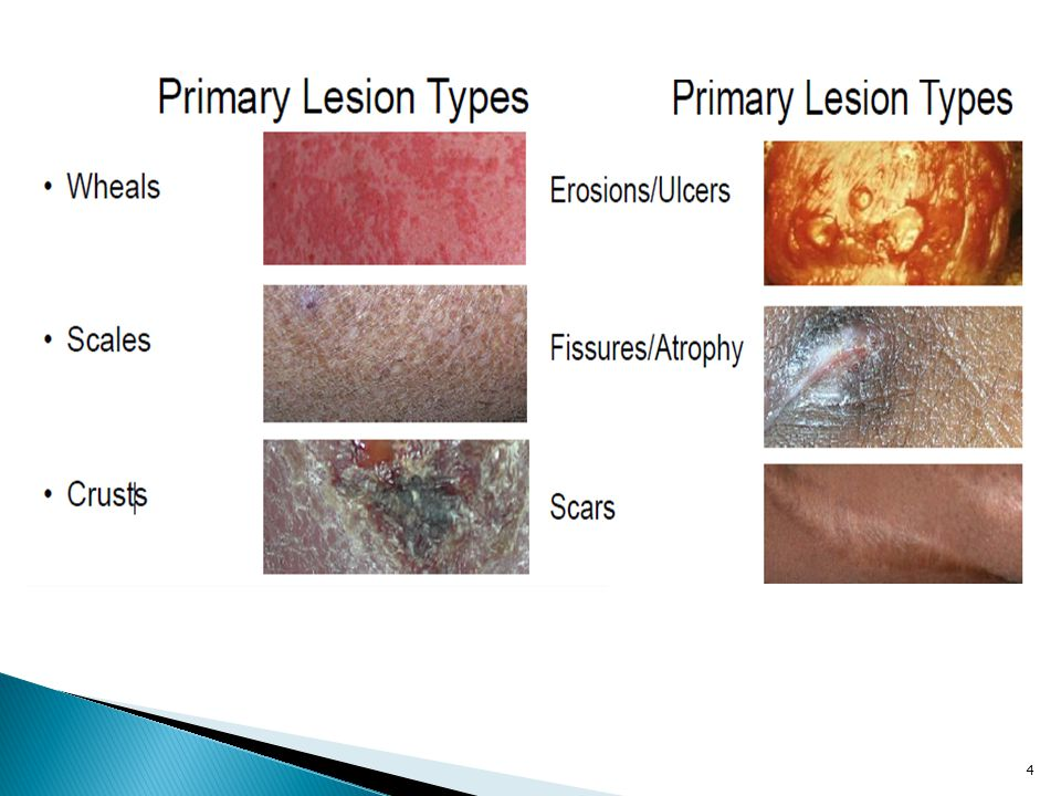  Macules: Macules are nonpalpable lesions that vary in pigmentation from the surrounding skin.