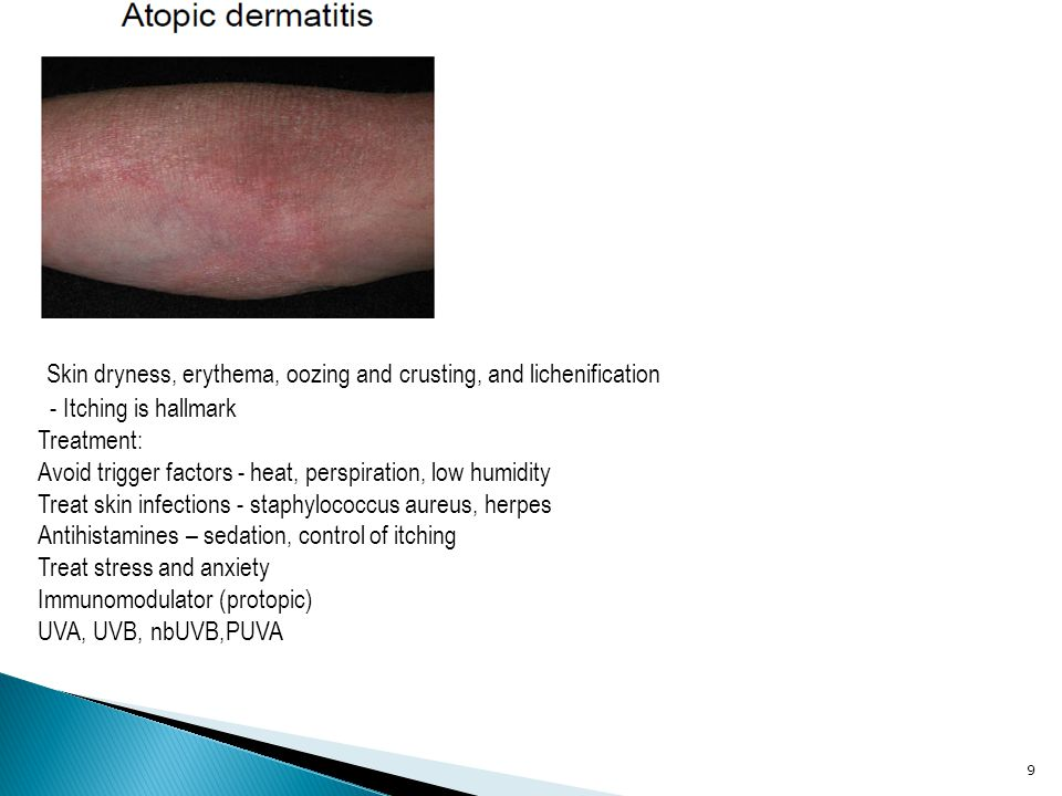 20 Types Chronic plaque psoriasis Guttate psoriasis Pustular psoriasis Erythrodermic psoriasis Treatment < 20% of body involved – Topical corticosteroids – Calcipotriene (Dovonex) Vitamin D3 analog – Tazarotene (Tazorac) – Anthralin (Anthra-derm) – Tar – UVB – Intralesional steroids Treatment Contd > 20% of body involved (phototherapy) – UVB Broad band, narrow band +/- topical, systemic, biologic agents( protopic) – PUVA Ultraviolet + psoralen +/- topical, systemic, UVB – Excimer laser
