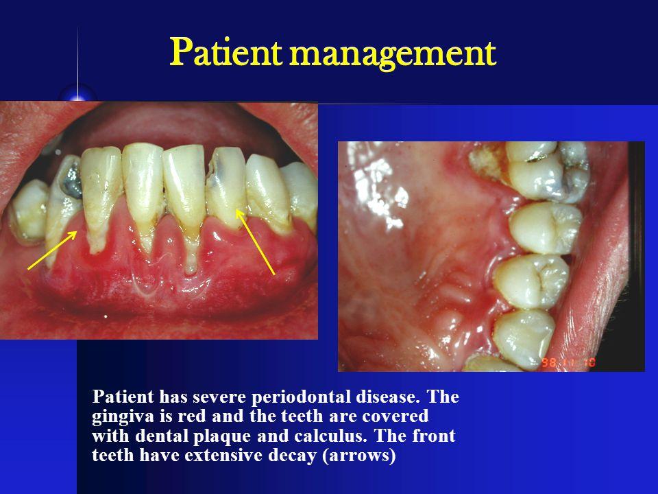 Patient management Patient has severe periodontal disease.