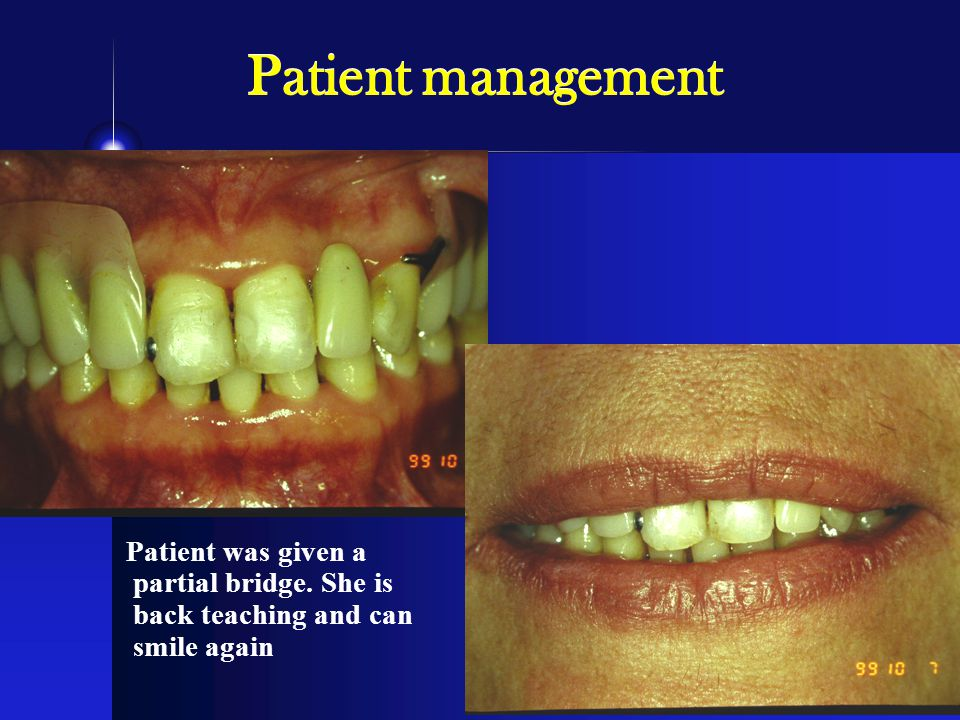 Patient management Patient was given a partial bridge. She is back teaching and can smile again