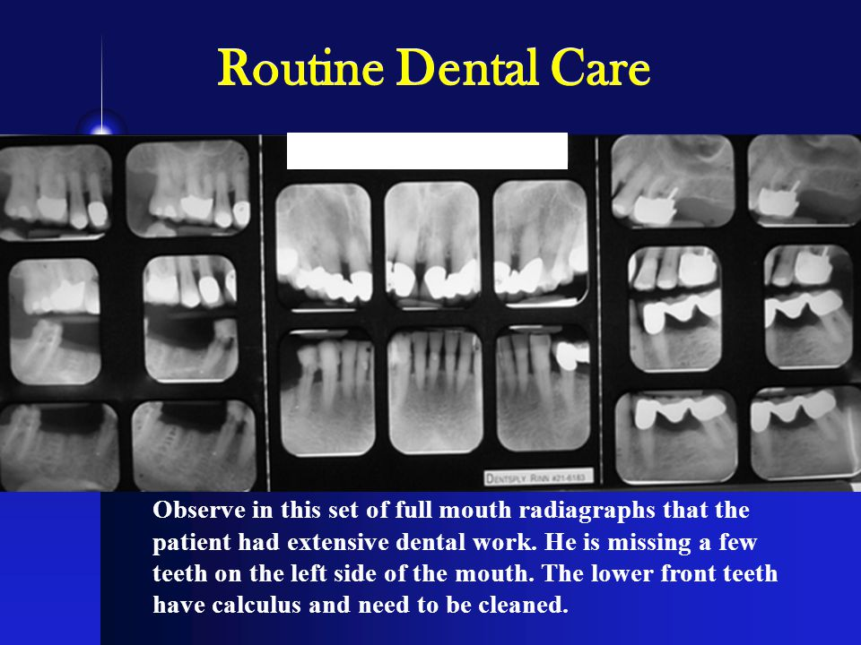 Observe in this set of full mouth radiagraphs that the patient had extensive dental work.