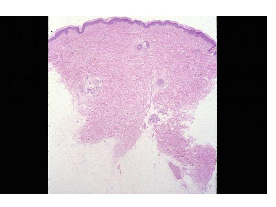 Psoriasis - scalp