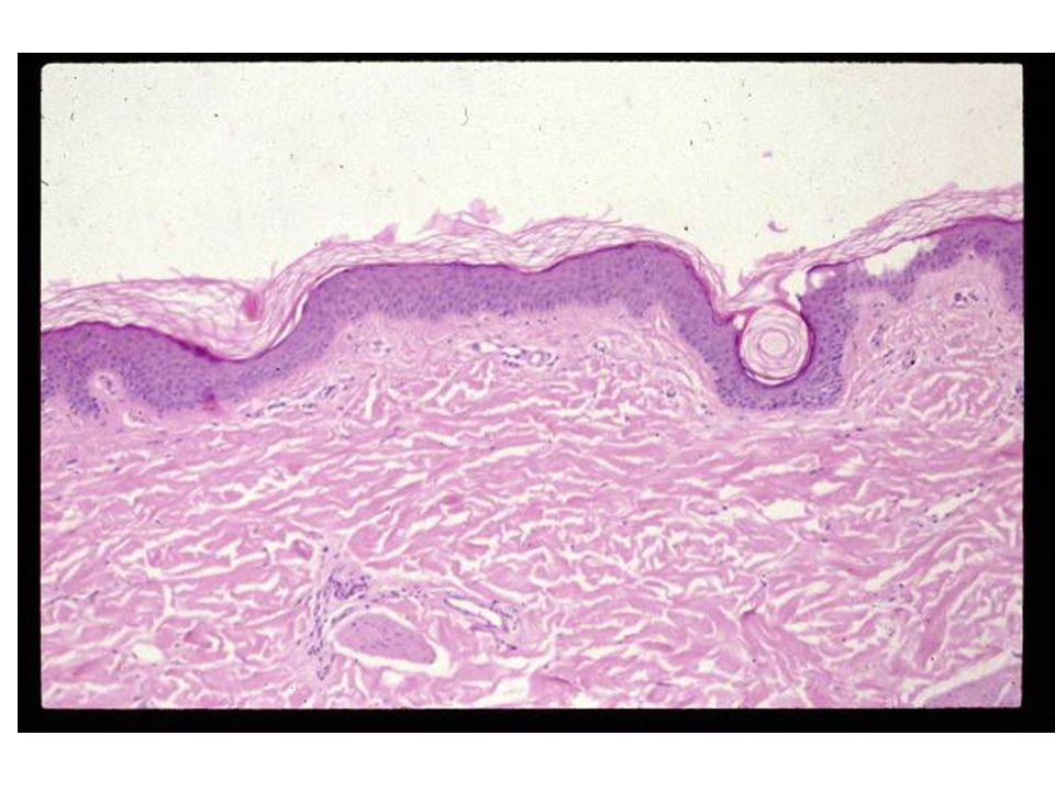 Bacterial Skin Disease Barrier – dry, tough, acidic, Ig in sweat, epidermal turnover every 28 days Normal Flora: Gm+, yeasts, anaerobes, Gm-