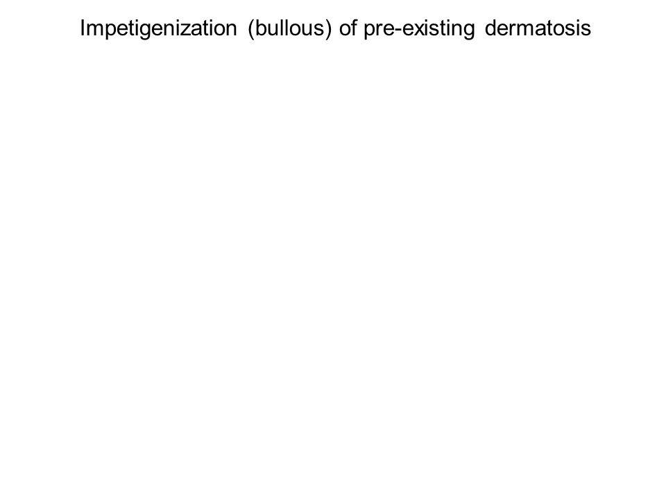 Impetigenized Atopic (Non-bullous) Staph. > strep.