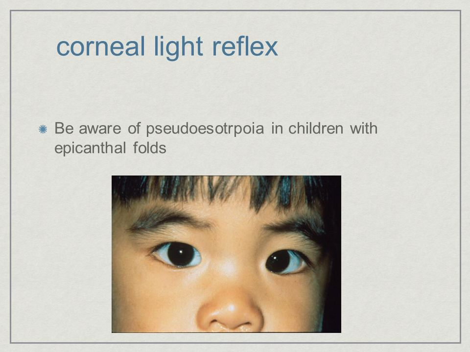 corneal light reflex Be aware of pseudoesotrpoia in children with epicanthal folds