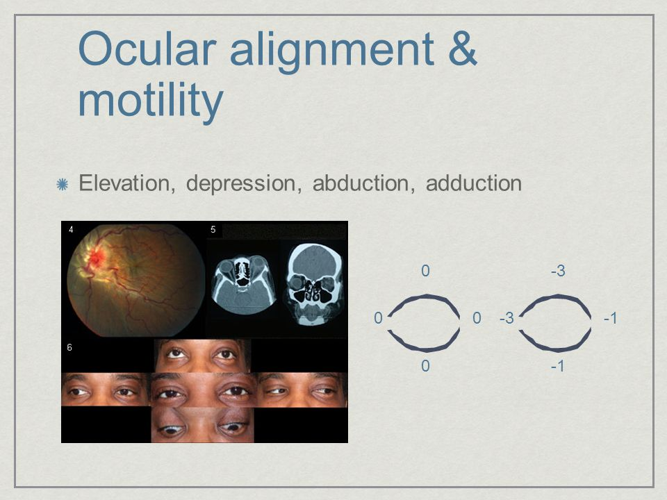 Ocular alignment & motility Elevation, depression, abduction, adduction 0 0 0 0-3 -3