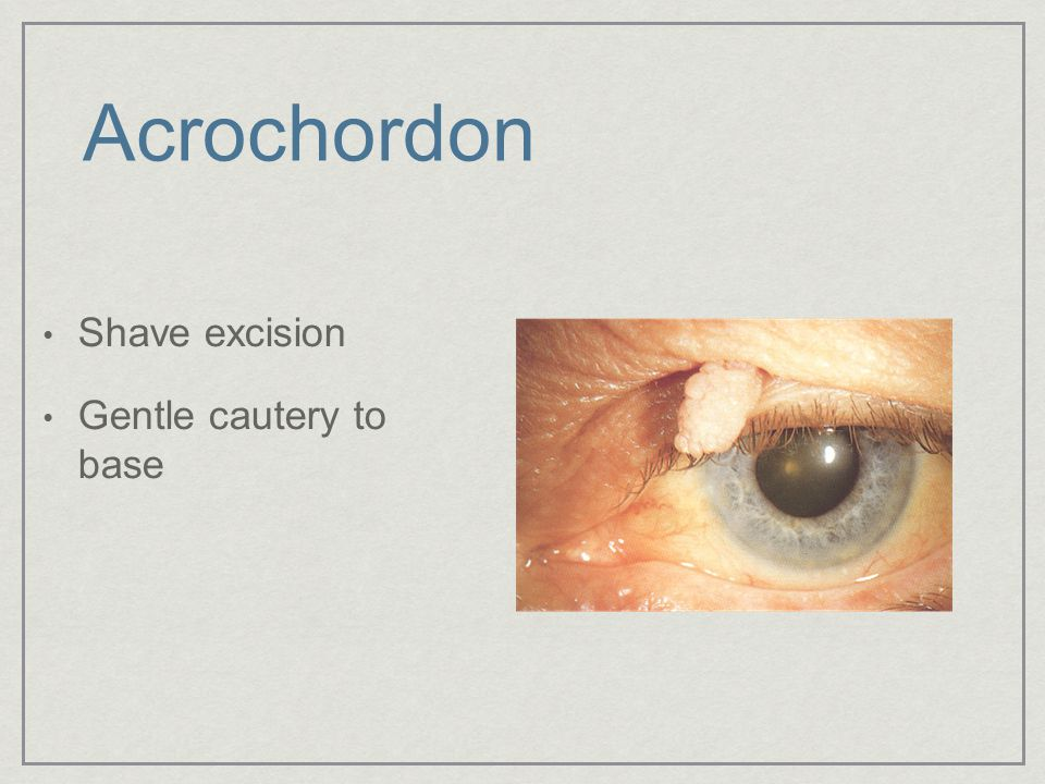Acrochordon Shave excision Gentle cautery to base