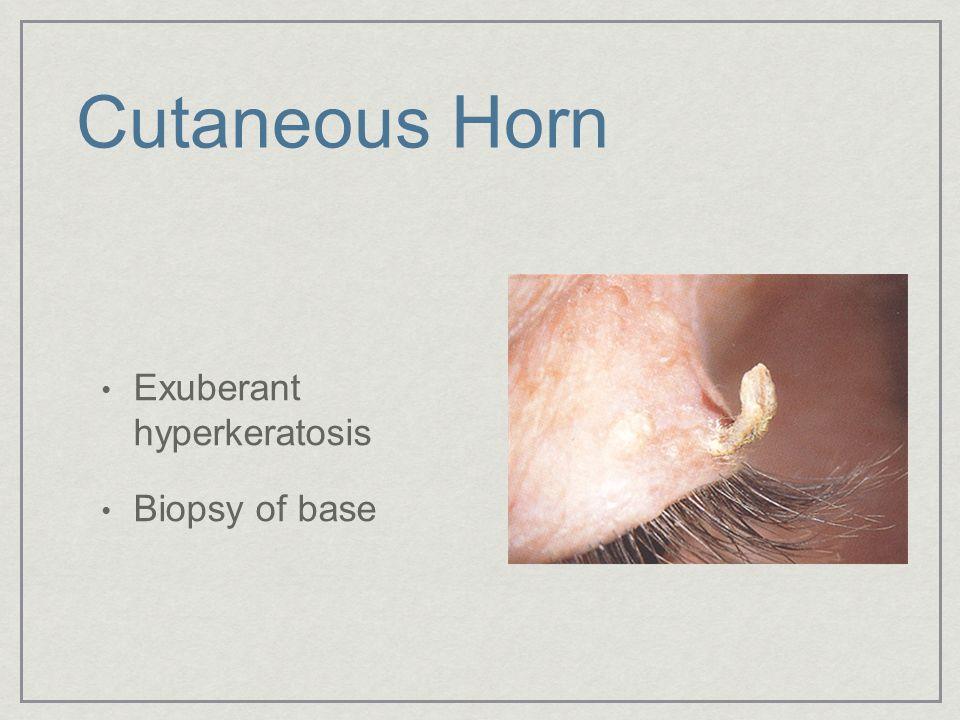 Cutaneous Horn Exuberant hyperkeratosis Biopsy of base