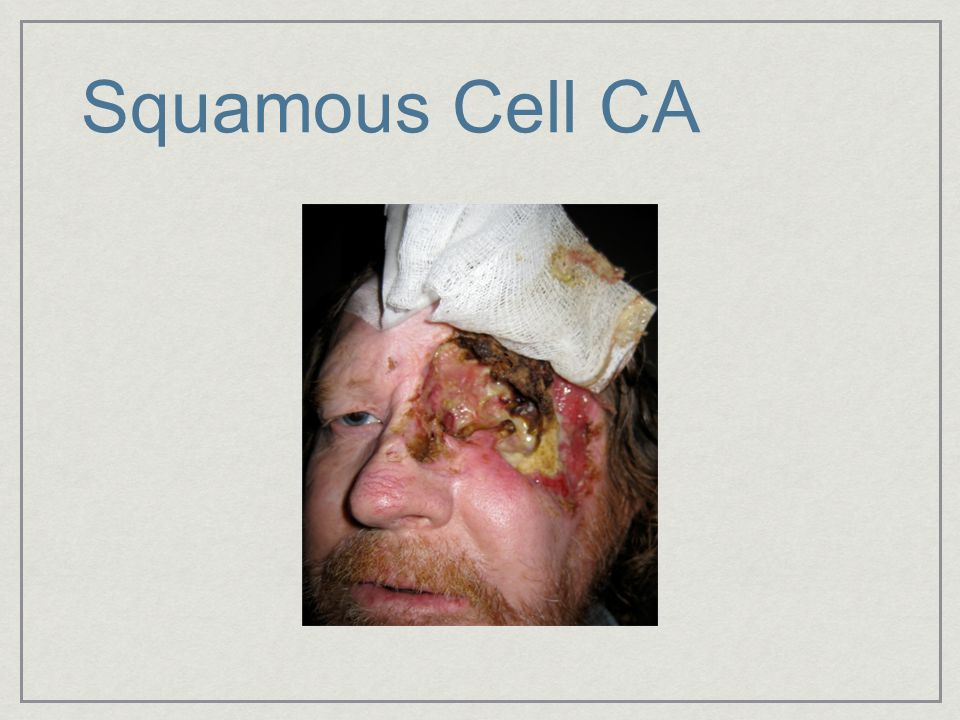 Squamous Cell CA