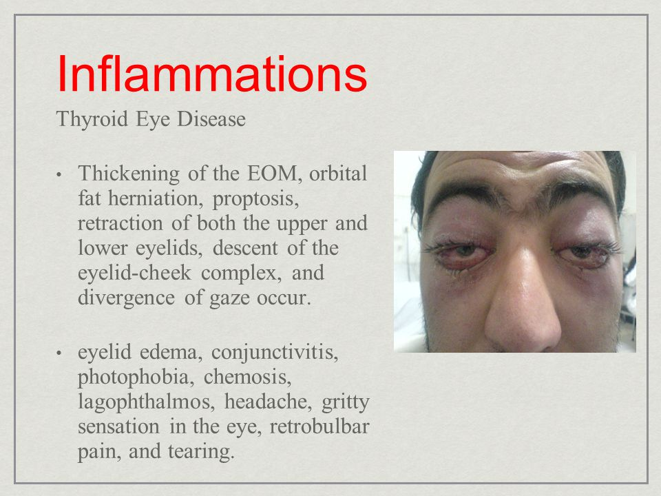 Inflammations Thyroid Eye Disease Thickening of the EOM, orbital fat herniation, proptosis, retraction of both the upper and lower eyelids, descent of