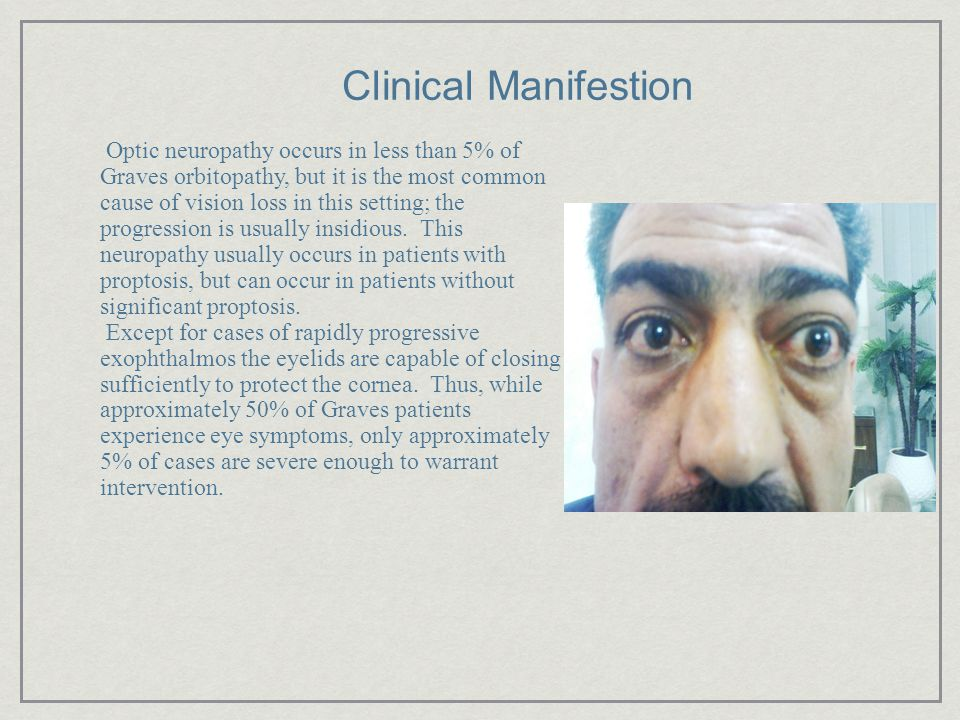 Clinical Manifestion Optic neuropathy occurs in less than 5% of Graves orbitopathy, but it is the most common cause of vision loss in this setting; th