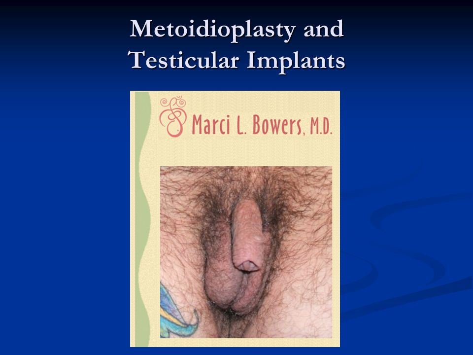 Metoidioplasty and Testicular Implants