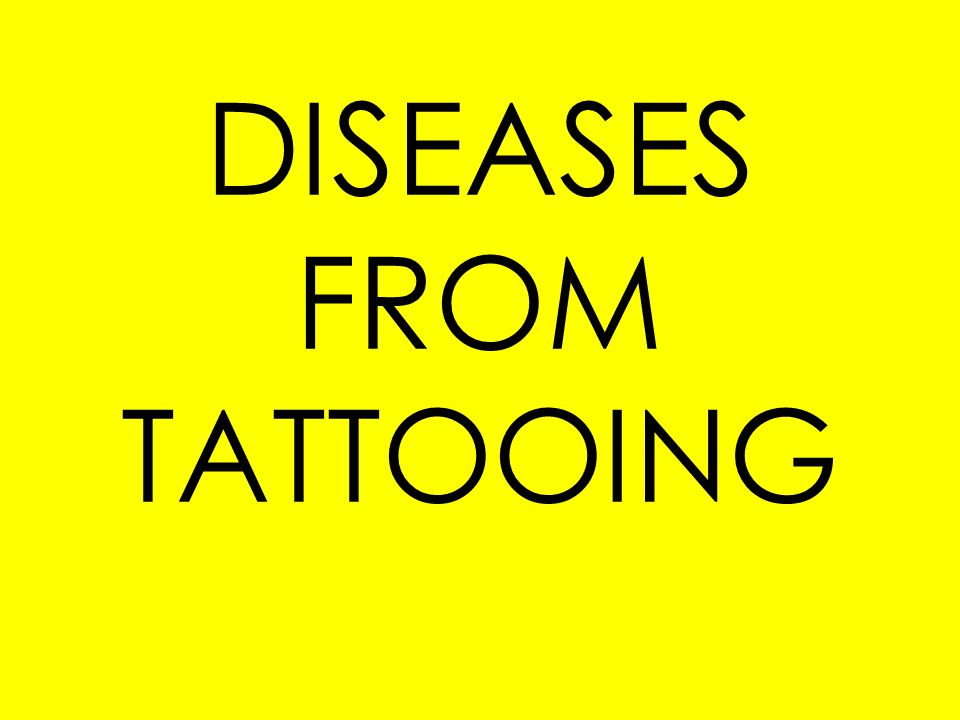 As long as the tattoo artist follows correct sterilization and sanitation procedures, the risk of contracting a disease is relatively low.
