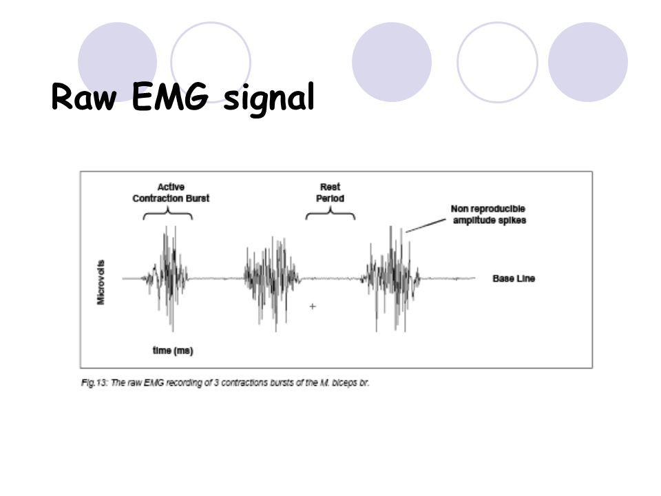 Raw EMG signal