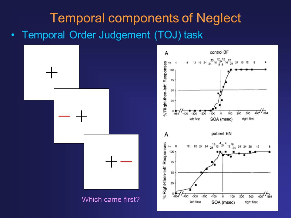 Temporal components of Neglect Temporal Order Judgement (TOJ) task Which came first?