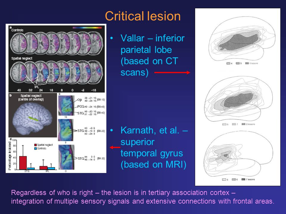 Critical lesion Vallar – inferior parietal lobe (based on CT scans) Regardless of who is right – the lesion is in tertiary association cortex – integr