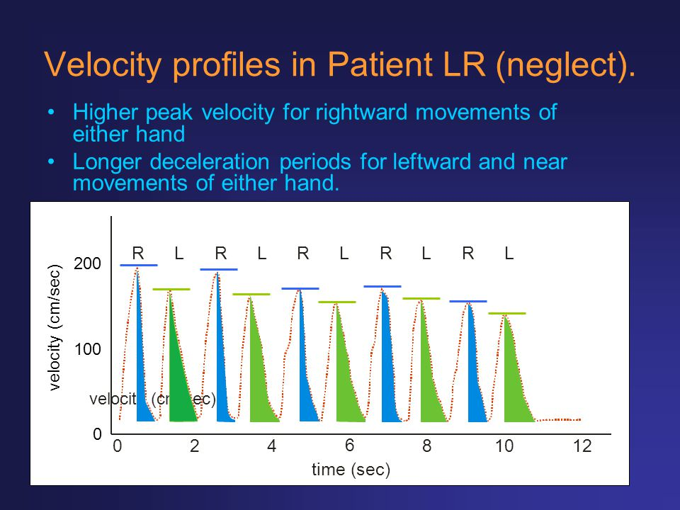 Velocity profiles in Patient LR (neglect). Higher peak velocity for rightward movements of either hand Longer deceleration periods for leftward and ne