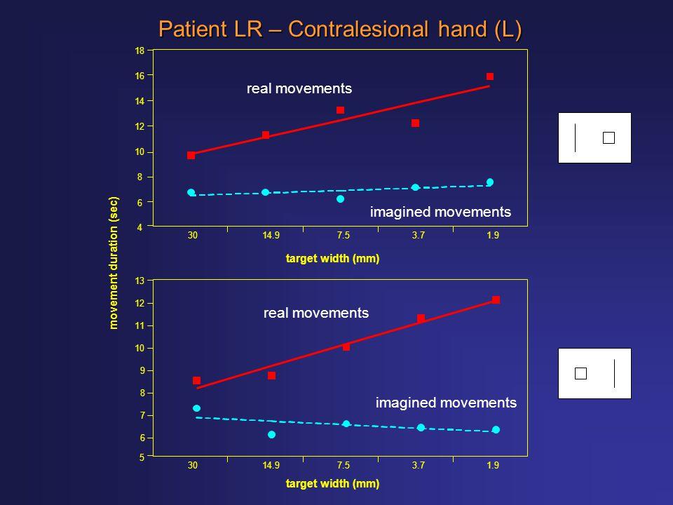 target width (mm) 4 6 8 10 12 14 16 18 3014.97.53.71.9 Patient LR – Contralesional hand (L) movement duration (sec) 3014.97.53.71.9 target width (mm)