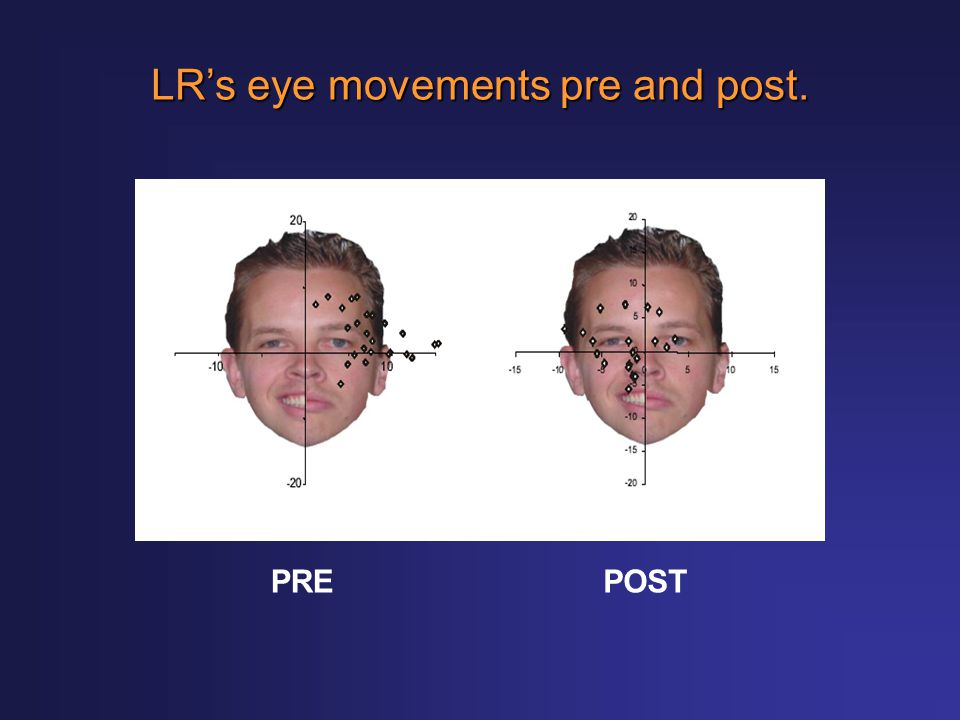 LR's eye movements pre and post. PREPOST