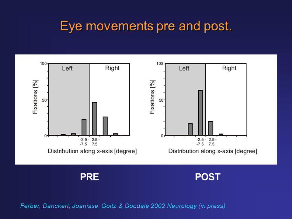 Eye movements pre and post. PREPOST Ferber, Danckert, Joanisse, Goltz & Goodale 2002 Neurology (in press)