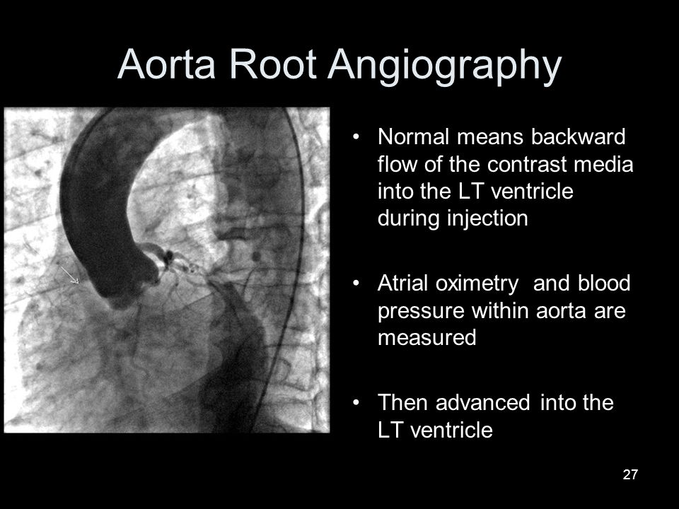 27 Aorta Root Angiography Normal means backward flow of the contrast media into the LT ventricle during injection Atrial oximetry and blood pressure w