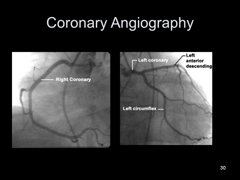 30 Coronary Angiography