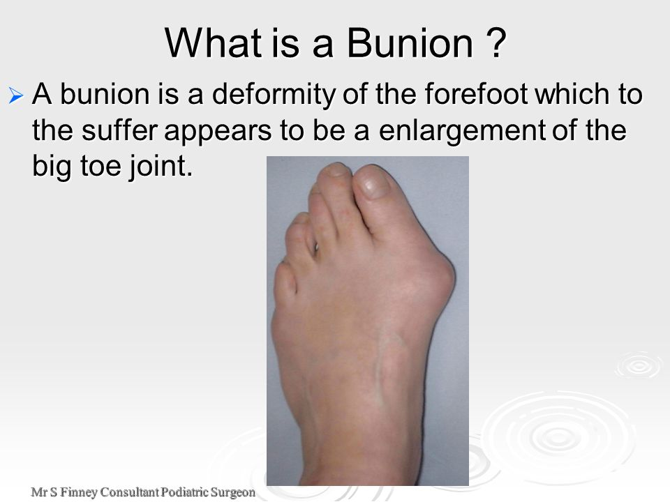 Mr S Finney Consultant Podiatric Surgeon What is a Bunion .