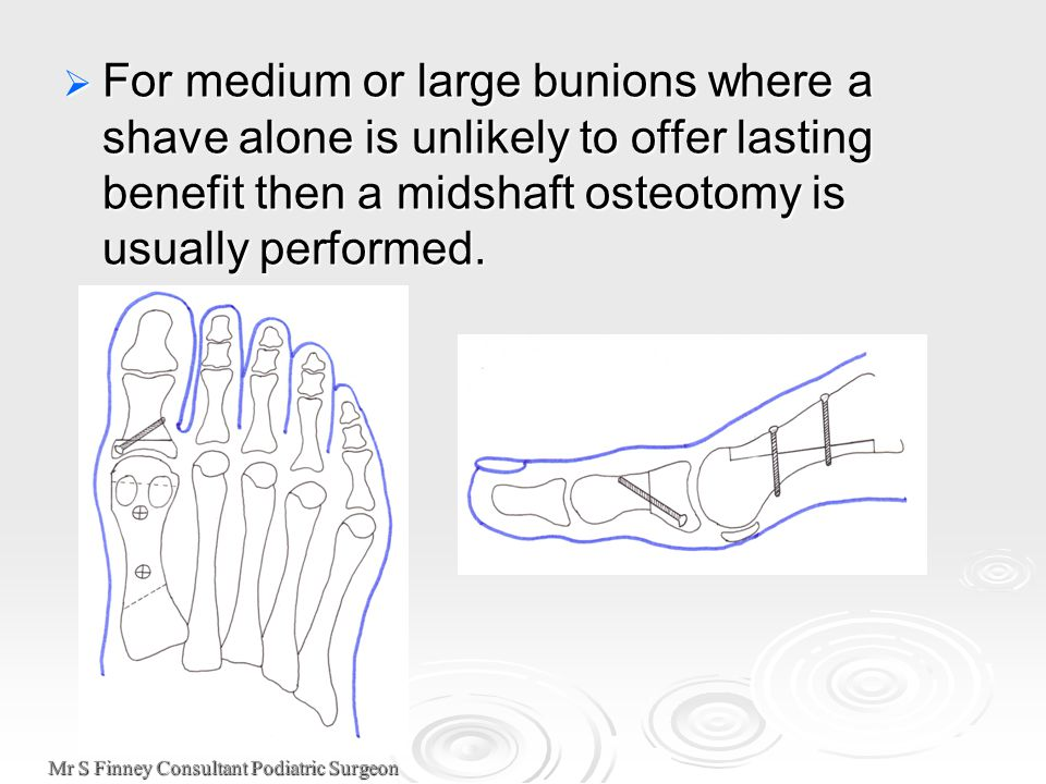 Mr S Finney Consultant Podiatric Surgeon  For medium or large bunions where a shave alone is unlikely to offer lasting benefit then a midshaft osteot