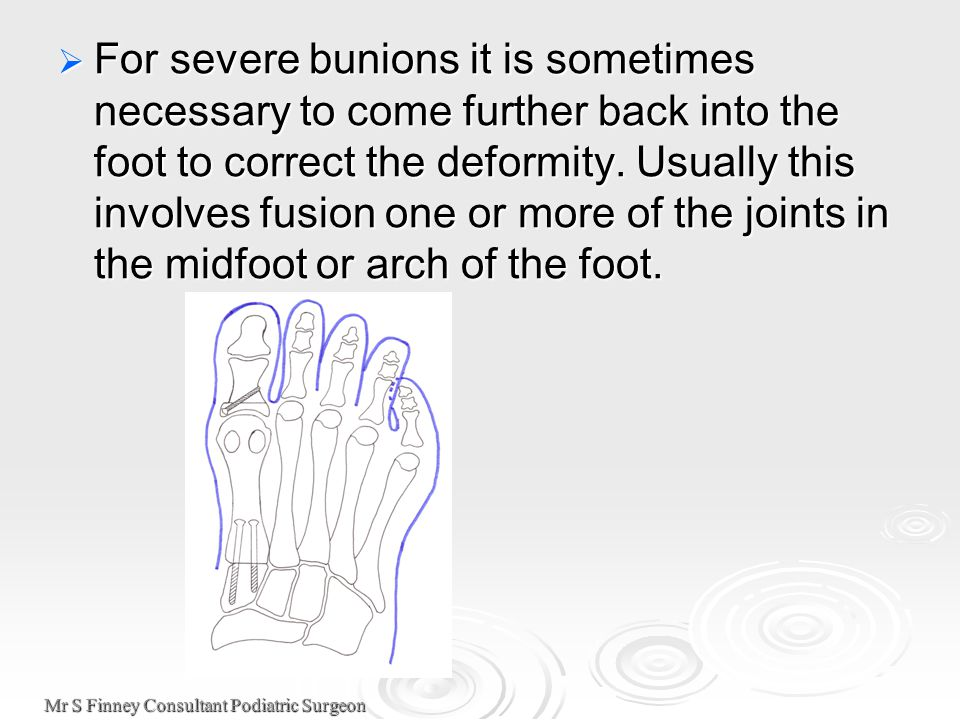 Mr S Finney Consultant Podiatric Surgeon  For severe bunions it is sometimes necessary to come further back into the foot to correct the deformity. U